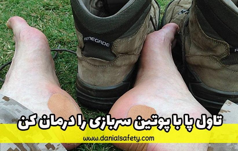 تاول پا با پوتین سربازی را درمان کن